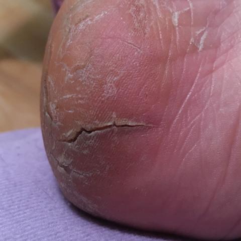 Rechter Fuß  - (Füße, Hornhaut, risse)