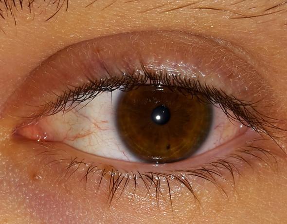 Rand iris dunkler um augen dunkler