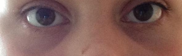 Meine Augenringe  - (Augen, Hausmittel, Augenringe)