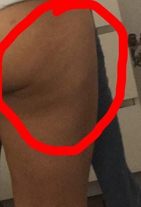 Was tun gegen Cellulite am Oberschenkel:(?