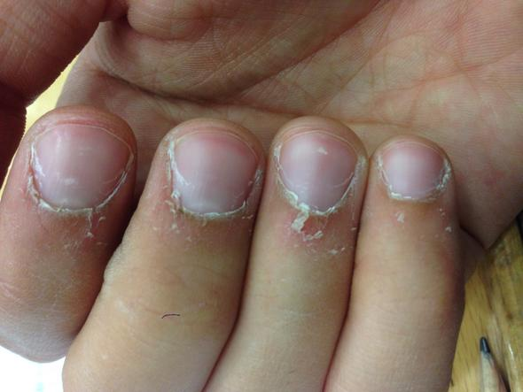 Was Kann Ich Gegen Trockene Finger Mit Sich Ablu00f6sender Haut Tun? (trocknen)