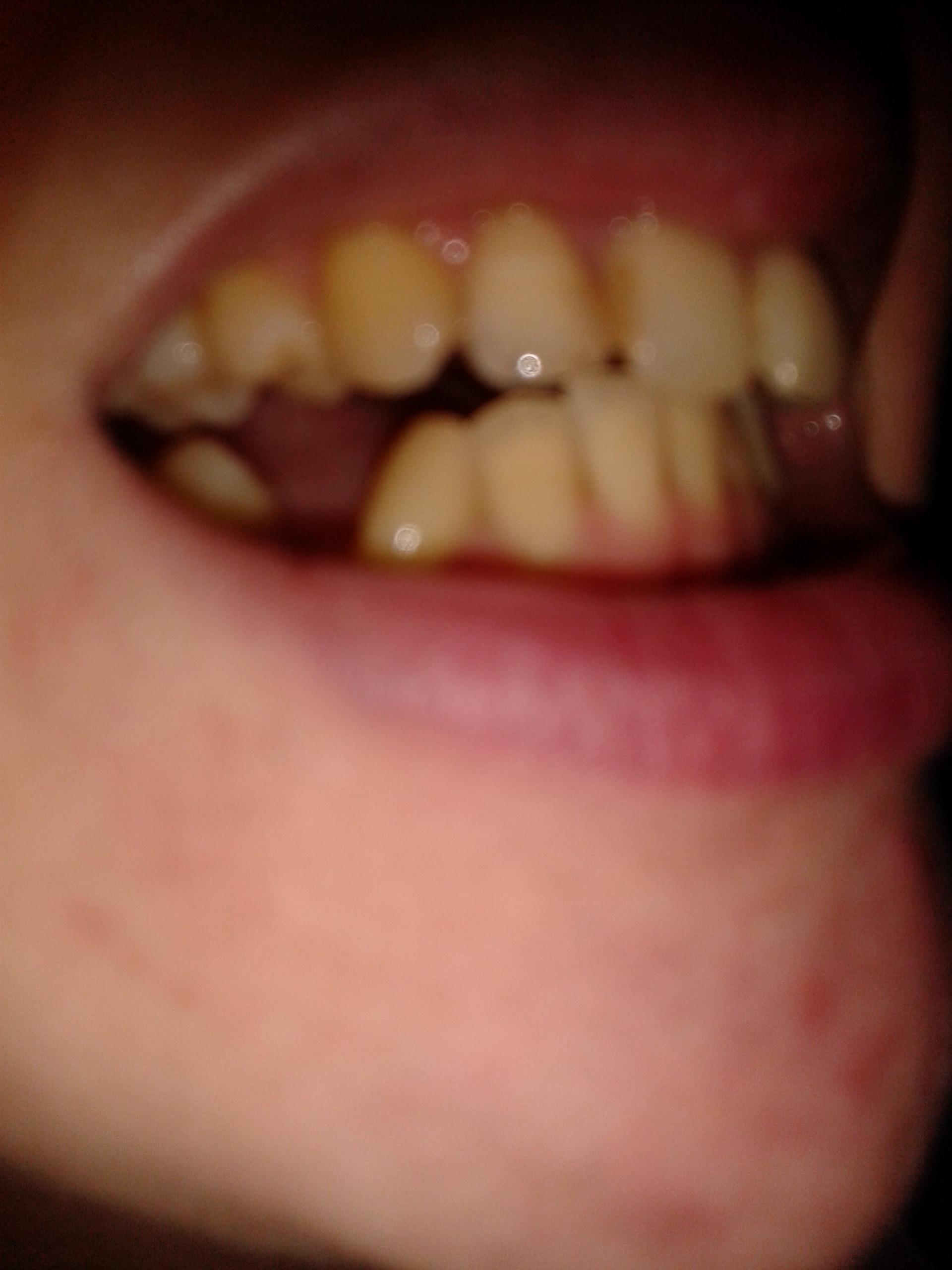 Tee Gelbe Zähne