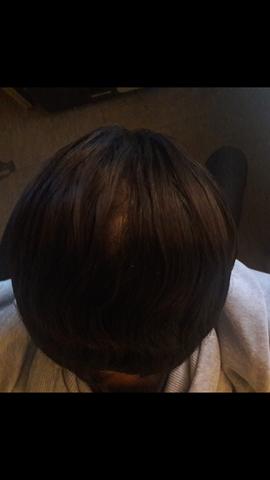 Lücke - (Gesundheit und Medizin, Haarausfall, Lücke)
