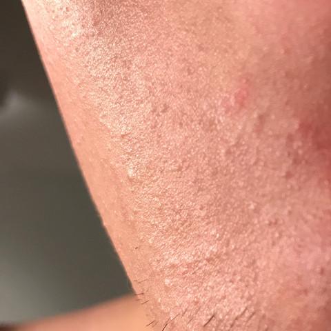 Kinn (nun rasiert) - (Haut, Pickel, Pflege)