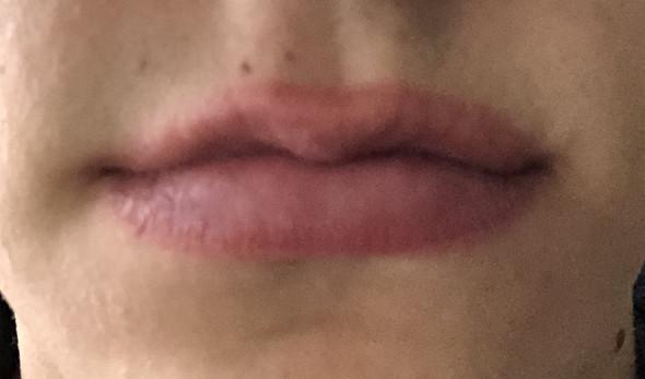 Was Tun Gegen Spröde Lippen
