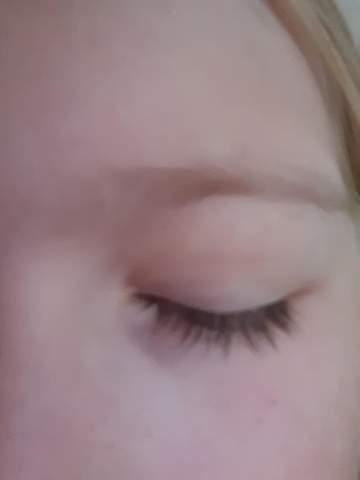 Was tun gegen schlimme Augenringe?