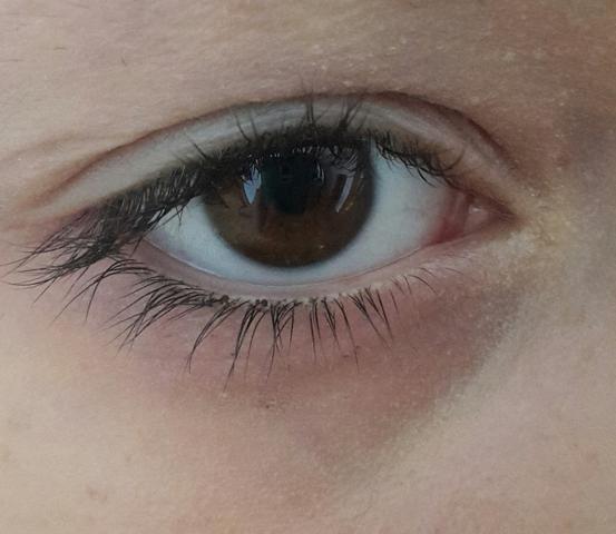 Was Tun Gegen Sehr Trockene Augen Trockene Haut