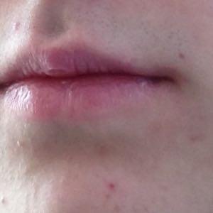 Was Tun Gegen Narben Im Gesicht