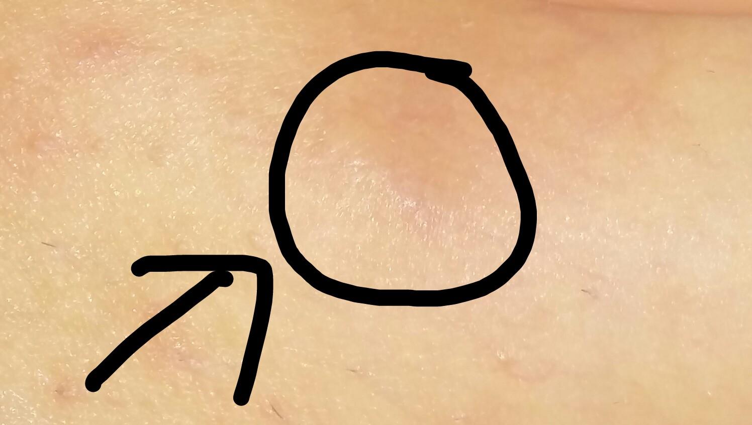 was tun gegen tief eingewachsenes haar bzw verkapselter pickel