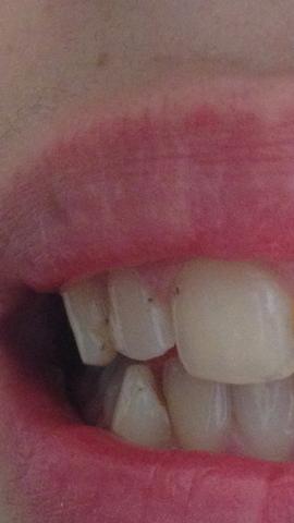Hier  - (Zähne, Zahnpflege, Mundhygiene)