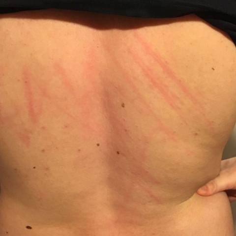 Der Rücken von meinem Freund  - (Betrug, Kratzer)