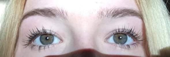 Augenfarbe Seltenheit