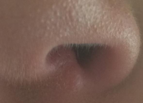 JA meine Nase  - (Nase, Blase)