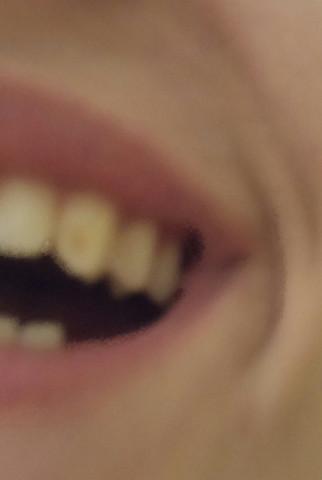 1. - (Zähne, gelber fleck)
