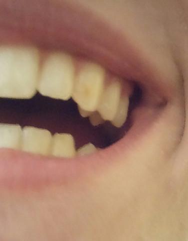 2. - (Zähne, gelber fleck)