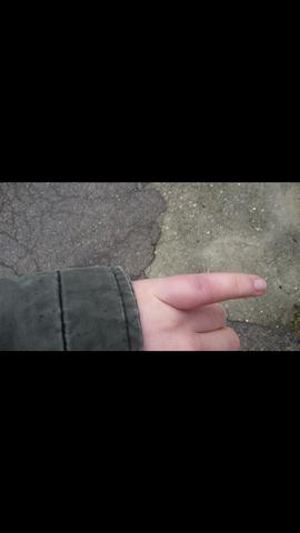der finger - (Schmerzen, Finger)