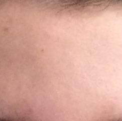 Meine Stirn - (Arzt, Haut, Pickel)