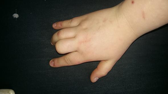 rechtes Handgelenk  - (Medizin, Schmerzen, Arzt)