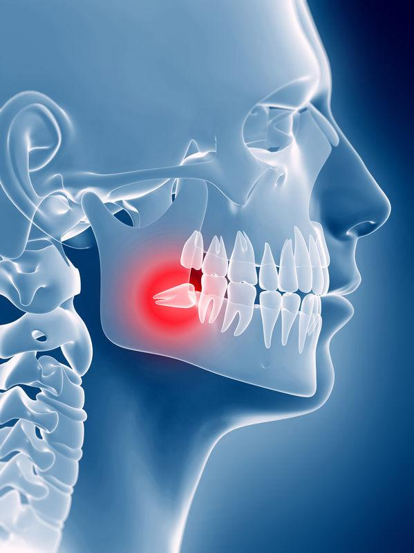 Weisheitszähne wachsen gegen den die anderen (unteren) Zähne?