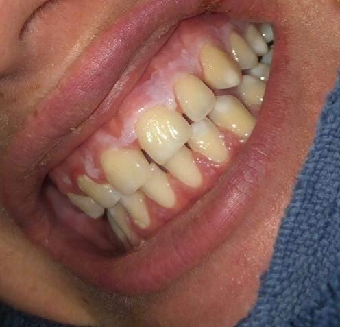 Zahnfleisch Weiße Stellen