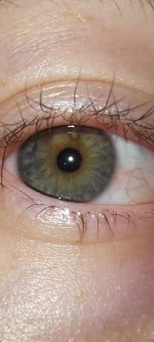 Weiß jemand was das für eine Augenfarbe ist?