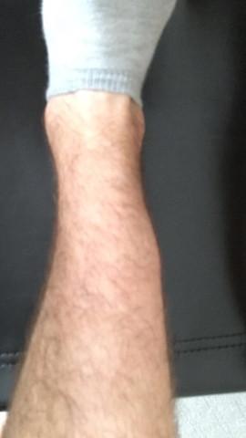 Rechtes Bein - (Gesundheit, Krankheit)