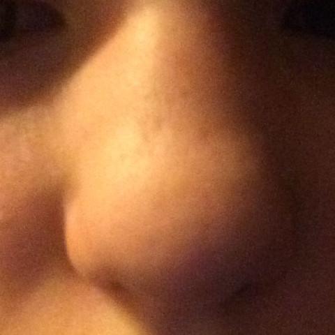 Wenn ich nicht so eine hässliche Nase hätte wäre ich eigentlich ziemlich hübsch. - (Gesundheit, Beauty, Gesicht)
