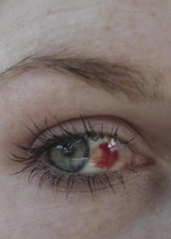 Auge Roter Fleck