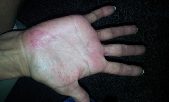 rechte hand - (Gesundheit, Gesundheit und Medizin, Medizin)