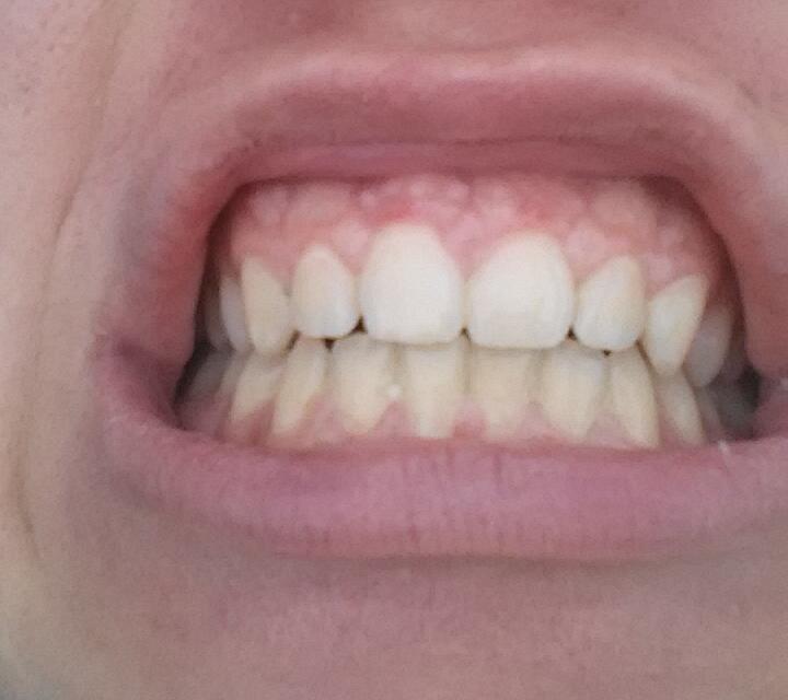 Weiße Punkte Auf Dem Zahnfleisch