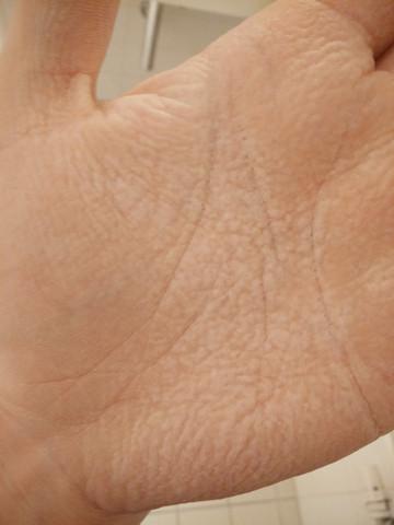 An Handinnenflächenweiß An Flecken Handinnenflächenweiß Flecken Weiße Weiße Weiße Flecken 35Aj4RL