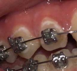 Weiße Flecken Am Zahnfleisch