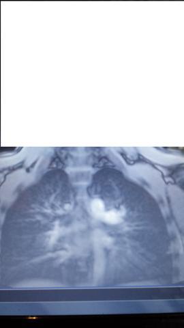 Bild - (Rückenschmerzen, röntgen)