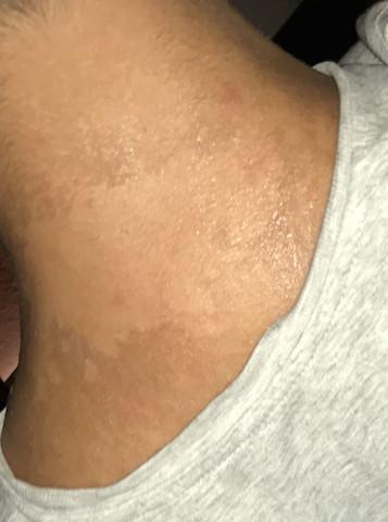 Die Haut pellt sich - (Gesundheit, Beauty, Arzt)