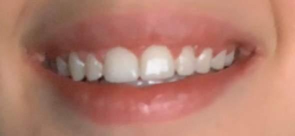 Weiße Flecken nach Zahnspange wegbekommen? (Gesundheit und
