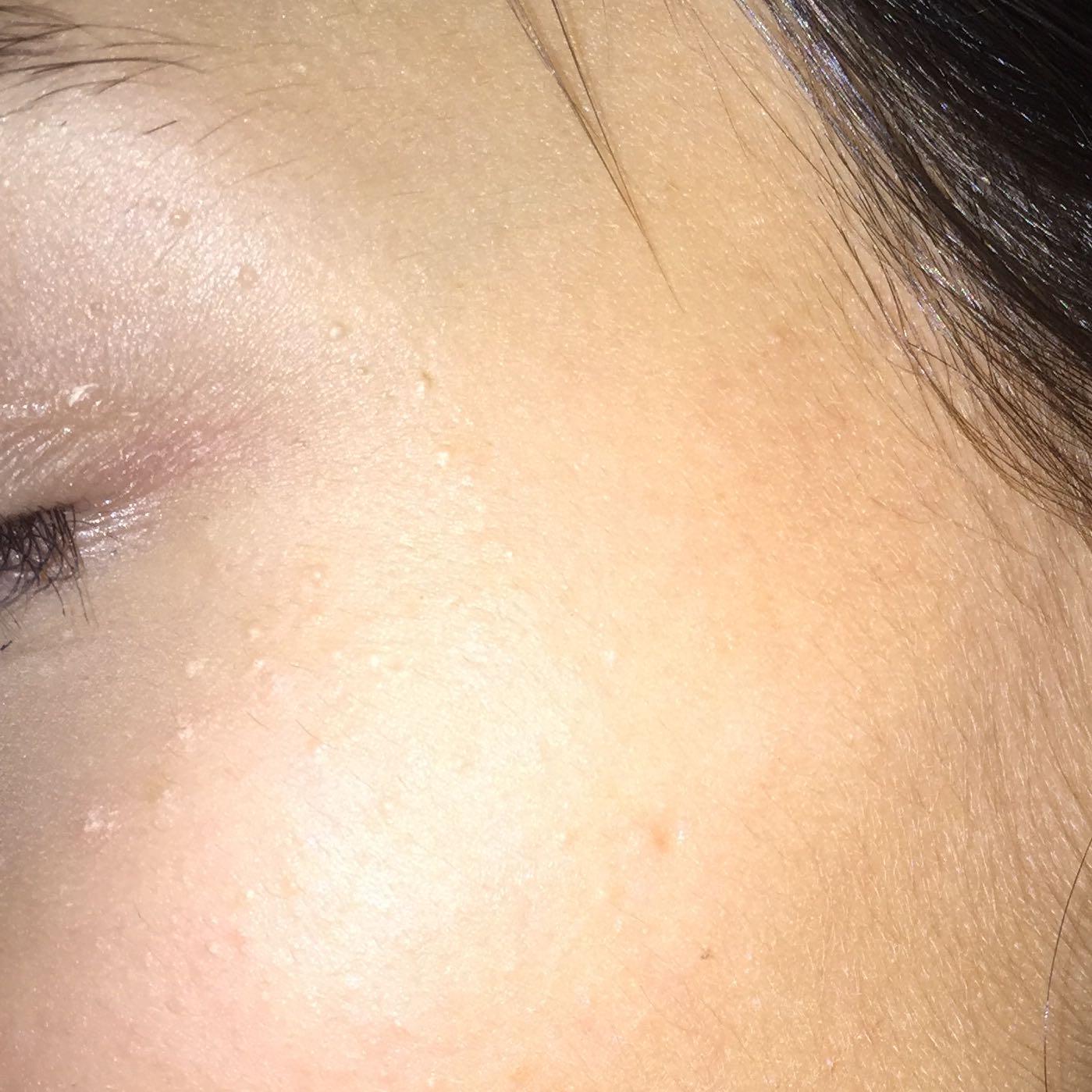 Weiße kleine pickelchen am Auge? (Mädchen, Haut, Pickel)