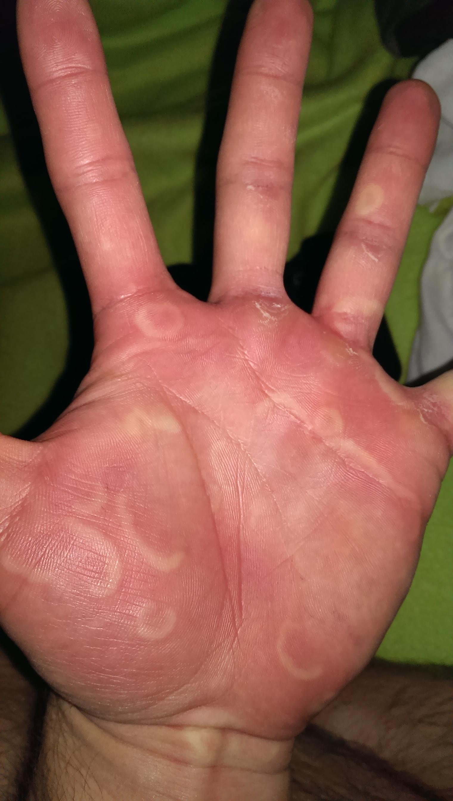 weiße kreise auf den händen was kann ich tun (schmerzen, arzt, sommer)