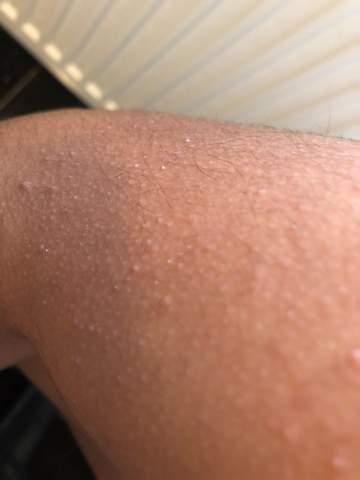 Weiße Punkte an der Haut?