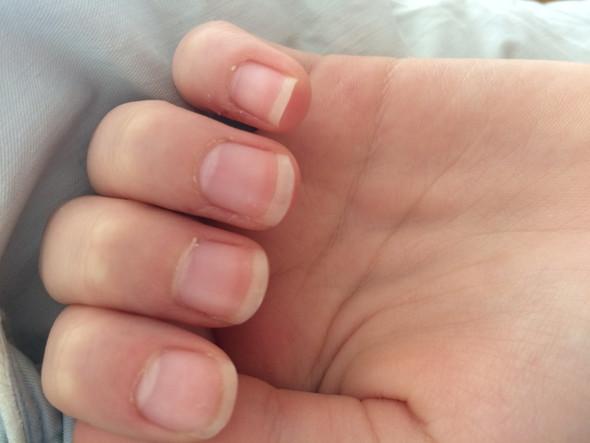 Weiße Punkte (Links) - (Finger, Fingernägel, weiße Punkte)