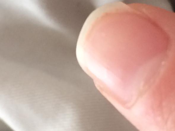Weiße Punkte (Linker Zeigefinger) - (Finger, Fingernägel, weiße Punkte)
