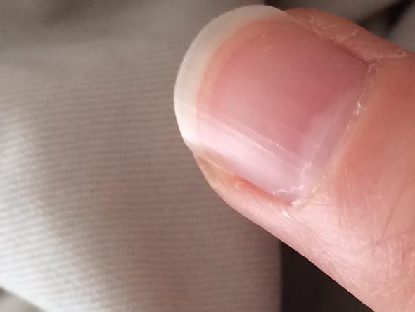 Weiße Punkte (Linker Mittelfinger) - (Finger, Fingernägel, weiße Punkte)