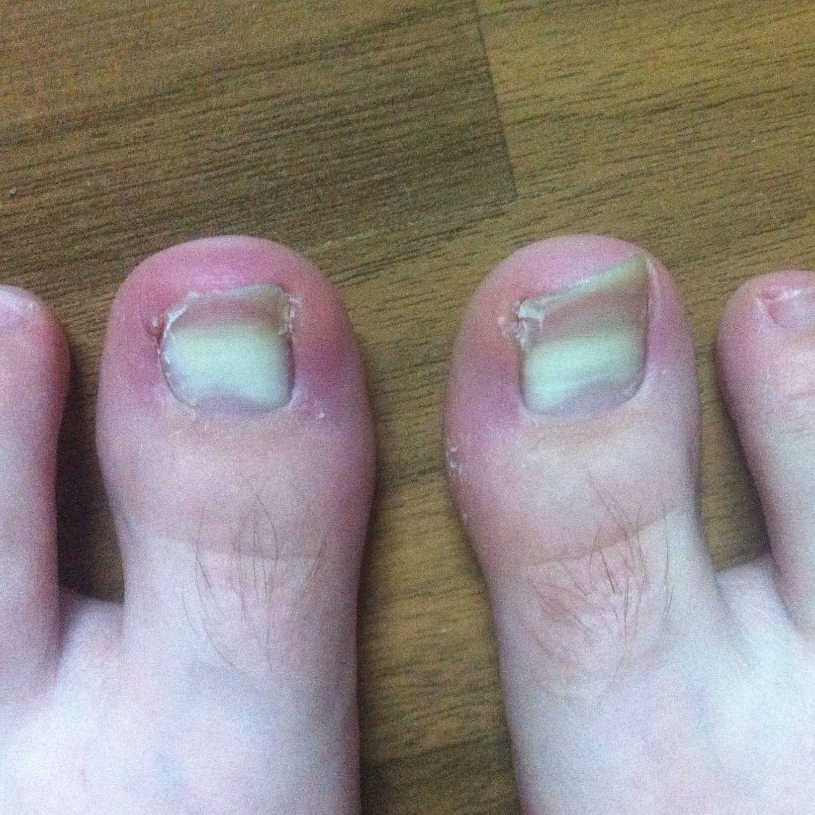 Weiße Verfärbung an Zehenägeln? (zehennägel)