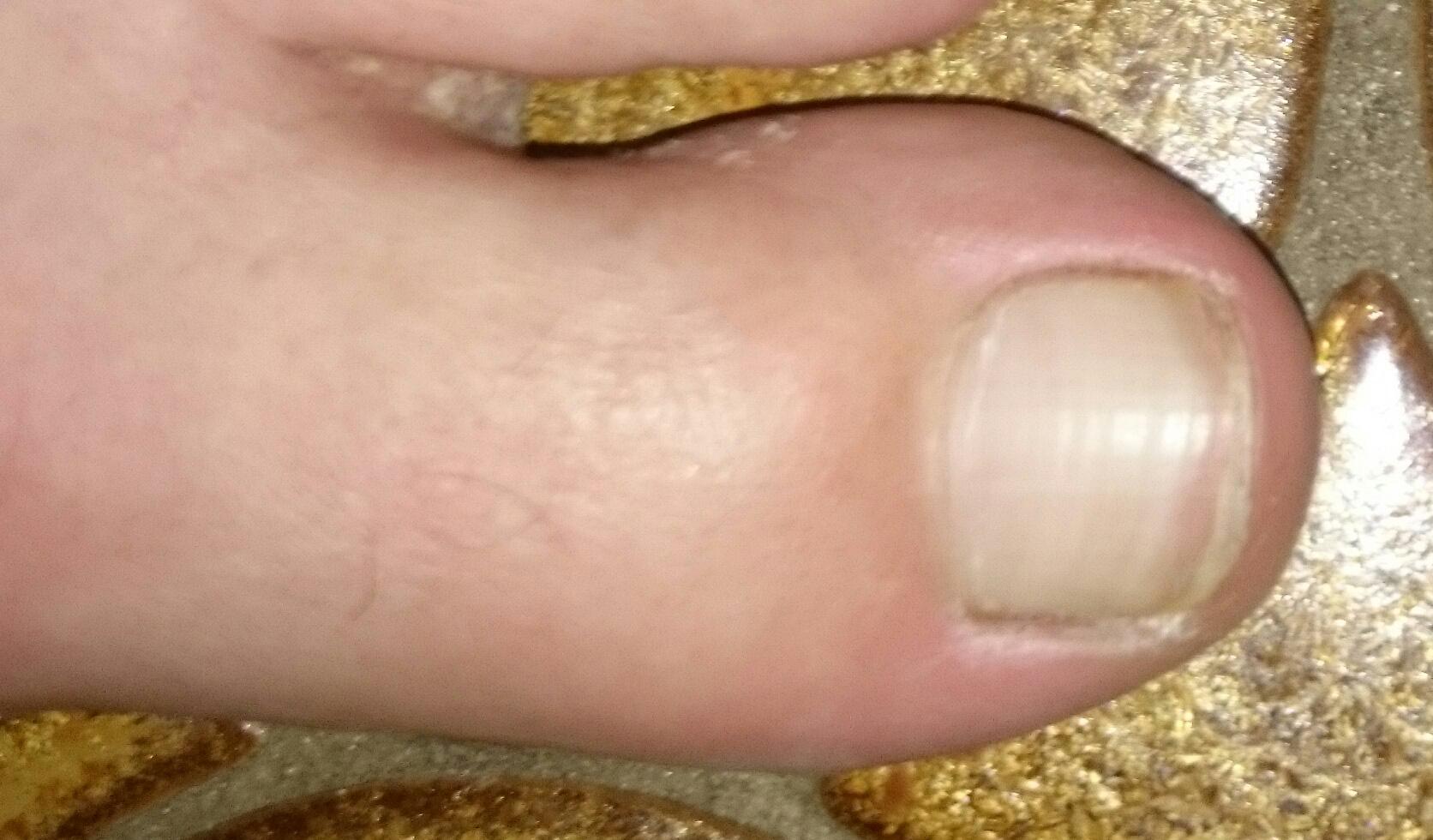 weiße zehennägel. kein pilz (Medizin, Füße)