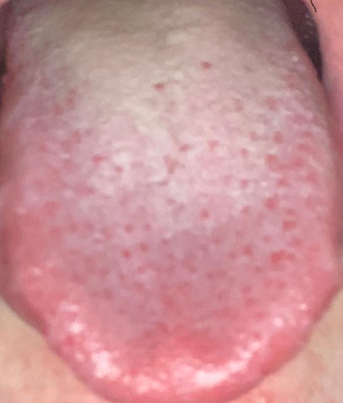 Weißer belag auf Zunge wie geht der weg? (Gesundheit und