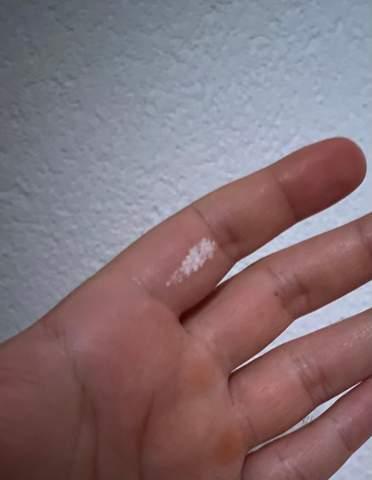 Auf weiße eichel flecken Ausschlag am