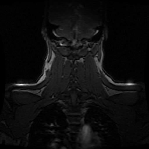Auf lunge der flecken weiße Lunge röntgenbild