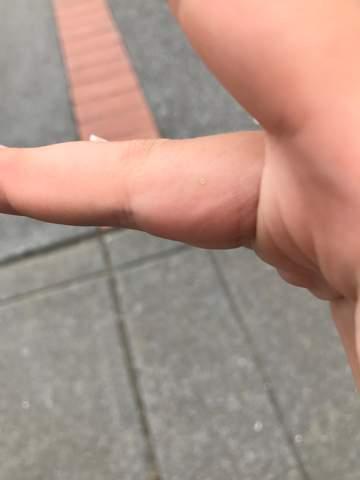 Weißer Punkt am Finger eine warze?