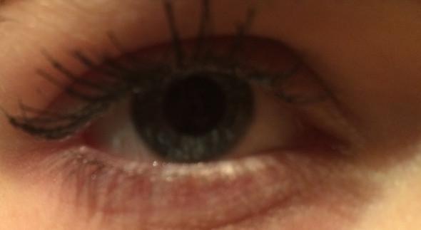 Auge - (Augen, augenform)
