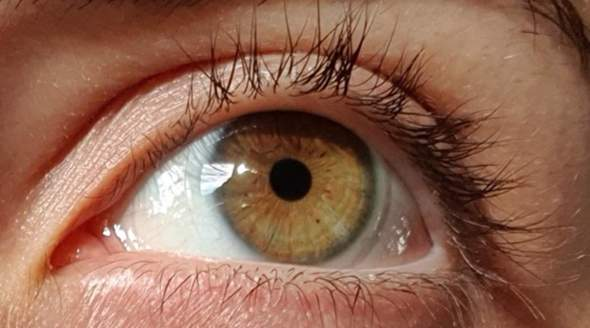 - (Augen, Augenfarbe)