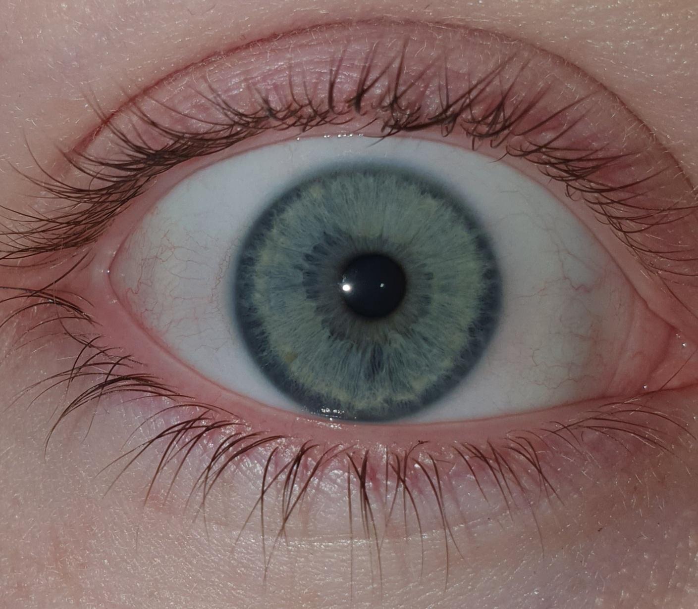 Welche Augenfarbe habe ich? (Augen, Farbe)